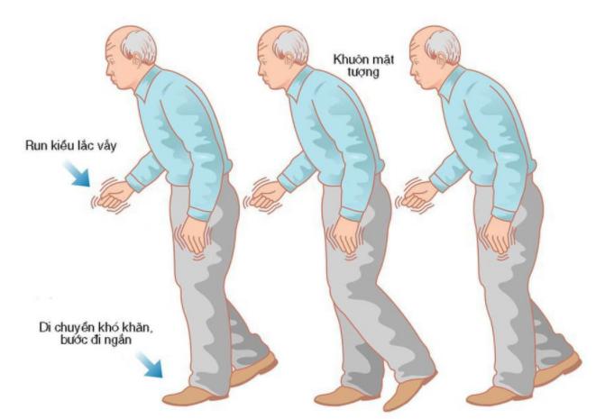 Tiêu chuẩn chẩn đoán Lâm sàng bệnh Parkinson của MDS